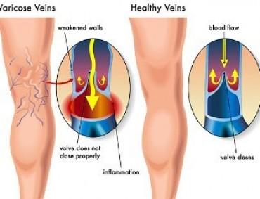 Zašto nastaju proširene vene