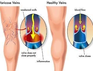 uzroci nastanka prosirenih vena