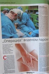 operacija vena vodenom parom